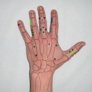 puntos acupuntura tung en la mano puntos 11.00 y 22.00
